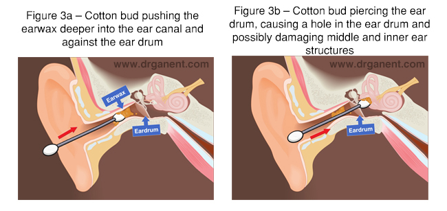 Earwax Dr Gan Eng Cern 65doctor Singapore 65 Doctor Singapore
